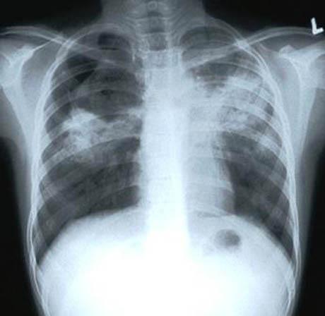 tuberculosis-xray